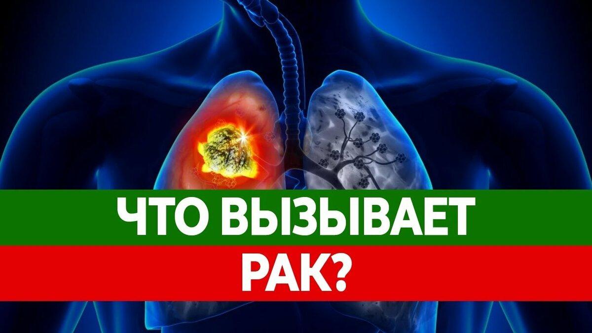 Почему появляется рак заболевание и опухоли?