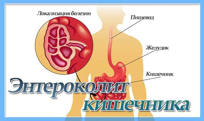 диета при заболевании кишечника