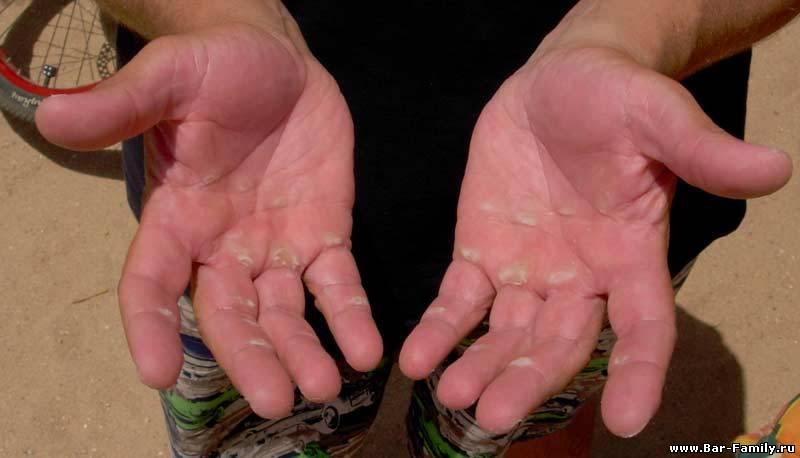 повреждение кожи и помощь