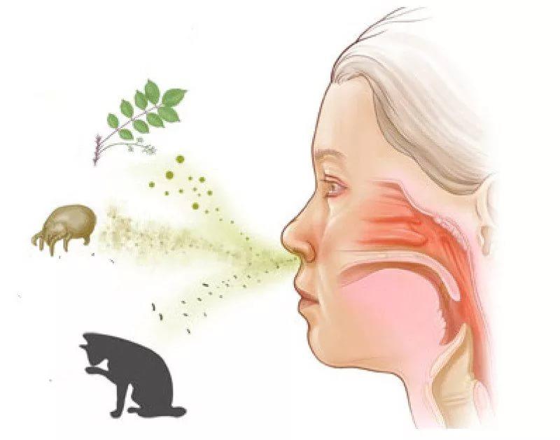 Факторы риска аллергии