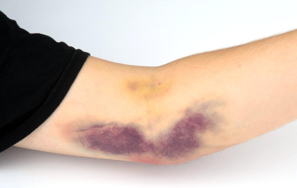 раны на коже