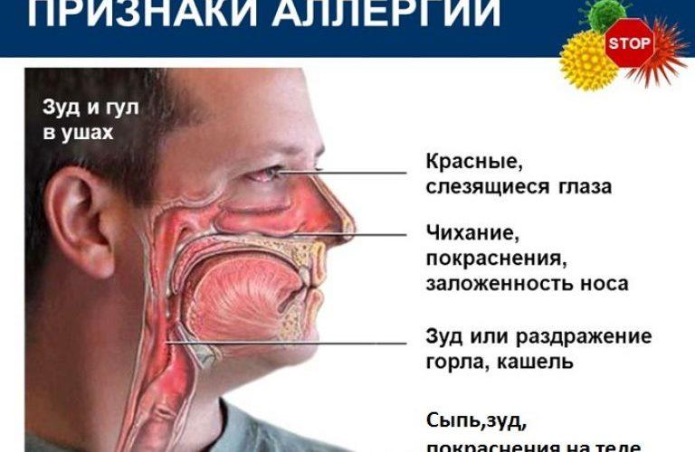 симптомы на аллергию
