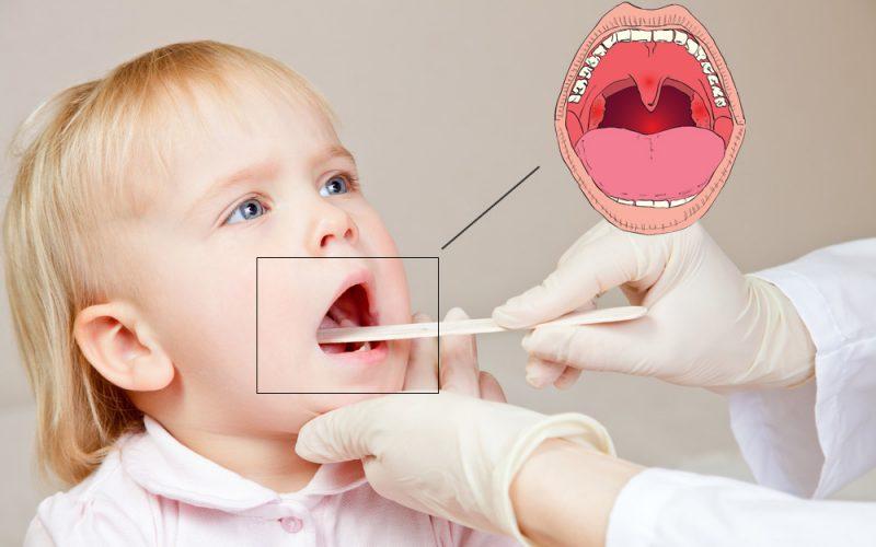 миндалины у ребенка